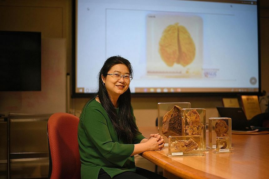 For the past six years, Associate Professor Nga Min En from NUS Yong Loo Lin School of Medicine has been digitising physical specimens of diseased body parts (displayed next to her) and uploading them as part of an online teaching resource called Pat