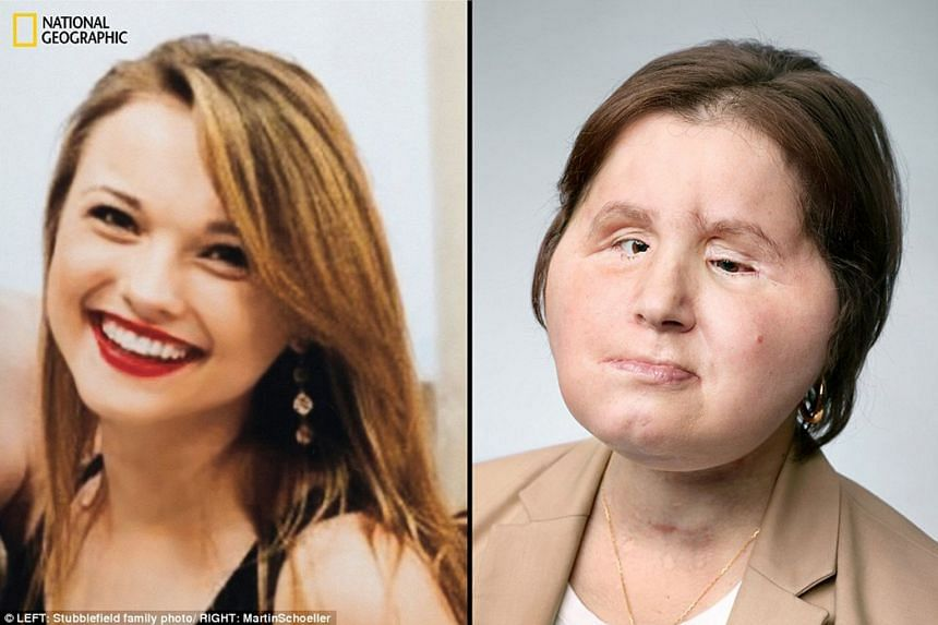 Ms Katie Stubblefield when she was 17 (left). At age 18, she put a rifle below her chin and shot herself, losing parts of her forehead, nose and sinuses, most of her mouth and bones that made up her jaw and structures of her face. Now, at 22 (right),