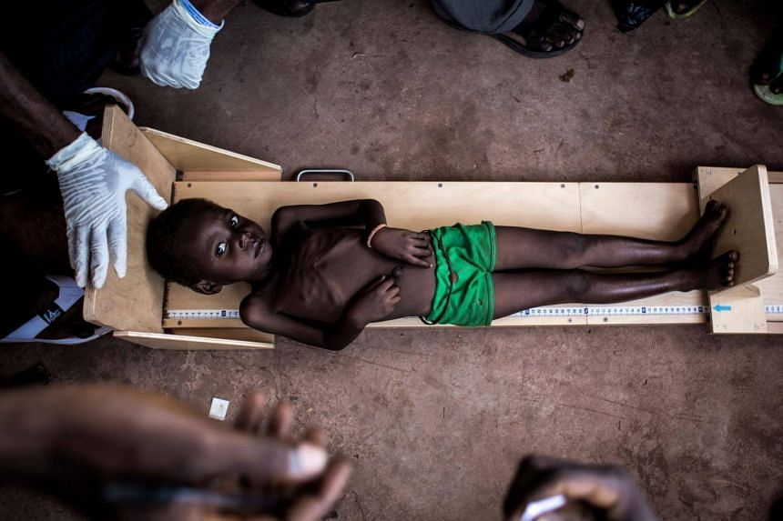 A file photo of a child being measured in a clinic treating cases of sever malnourishment in Tshikapa, in the restive region of Kasai, in the Democratic Republic of Congo.
