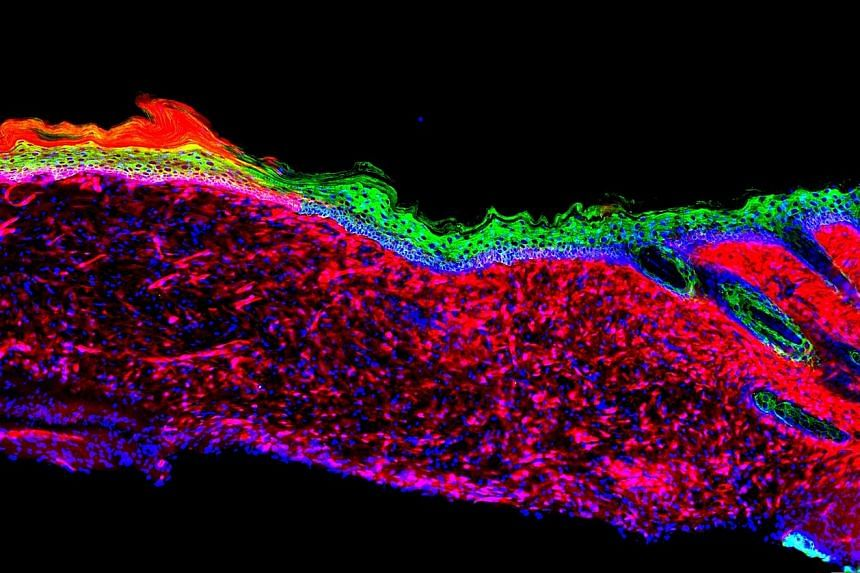 Scientists have developed a technique to directly convert the cells in an open wound of patients with, for instance, severe burns, bedsores or chronic diseases such as diabetes, into new skin cells. The approach relies on reprogramming the cells to a