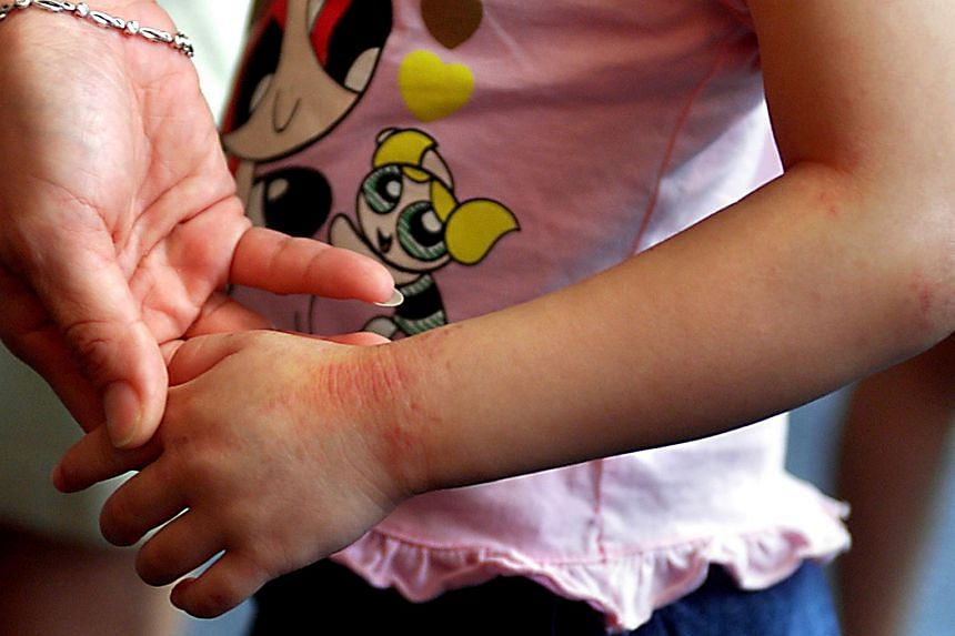 Rashes on the arms of a child. A study has found that the skin disease atopic dermatitis, or eczema, strikes about 21 per cent of primary and secondary students in Singapore.