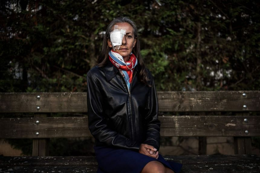 Corine Remande, 49, poses on Oct 3, 2018, in Lyon, after she said she was taking legal action against the Ryder Cup organisers.