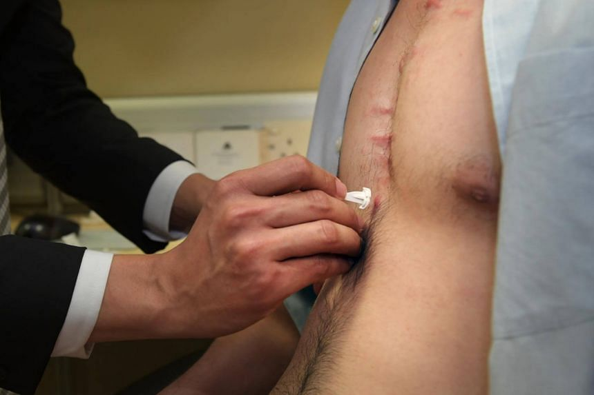 Patients can use the patch at home, unlike the injection which requires visiting a clinic.
