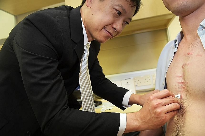 Dr Tey Hong Liang, who heads the National Skin Centre's research department, doing a mock demonstration of applying the micro-needle patch (above, left) on a patient with keloids.