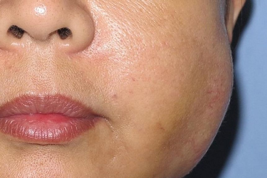 A patient who went to South Korea for a facelift (above) ended up with infection setting in after the procedure, and pus accumulating in both of her cheeks. South Korea is one of the world's hot spots for plastic surgery. In the district of Gangnam,