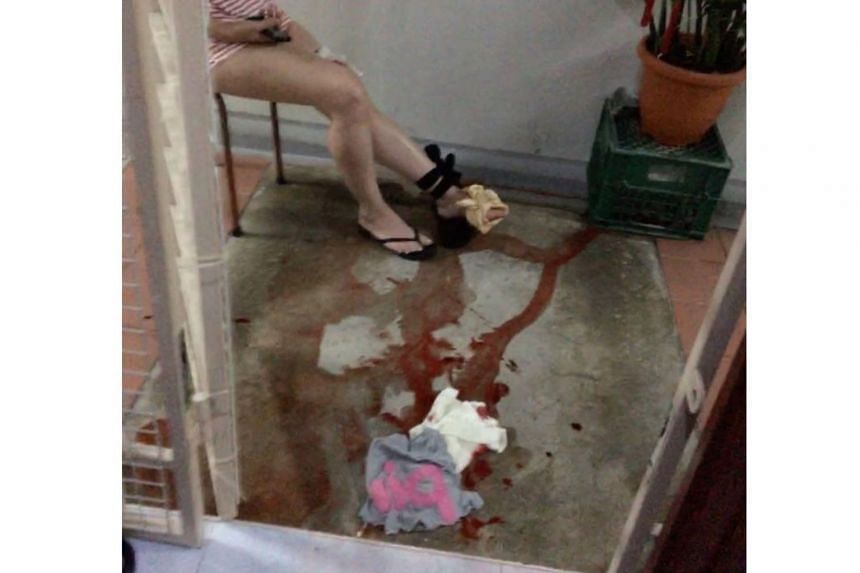 Mrs Chan was left bleeding profusely after a python bit her on her left leg.