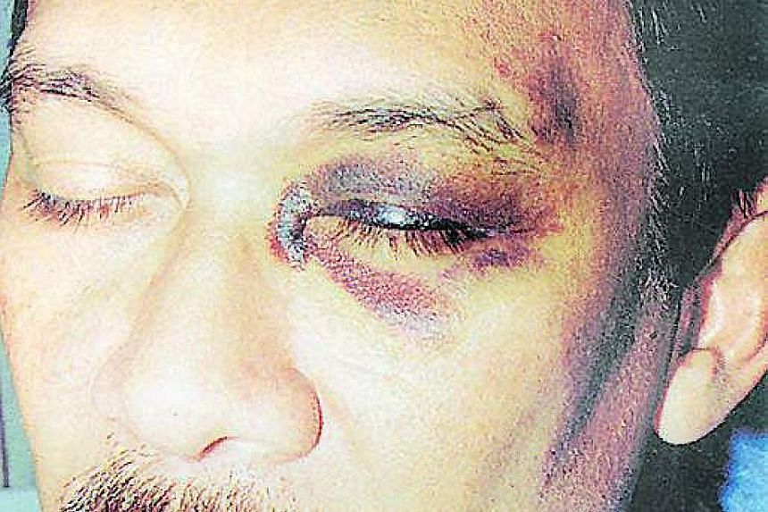 Anwar turns up in court with a black eye (above) on Sept 29, 1998, after being beaten by police chief Abdul Rahim Noor.