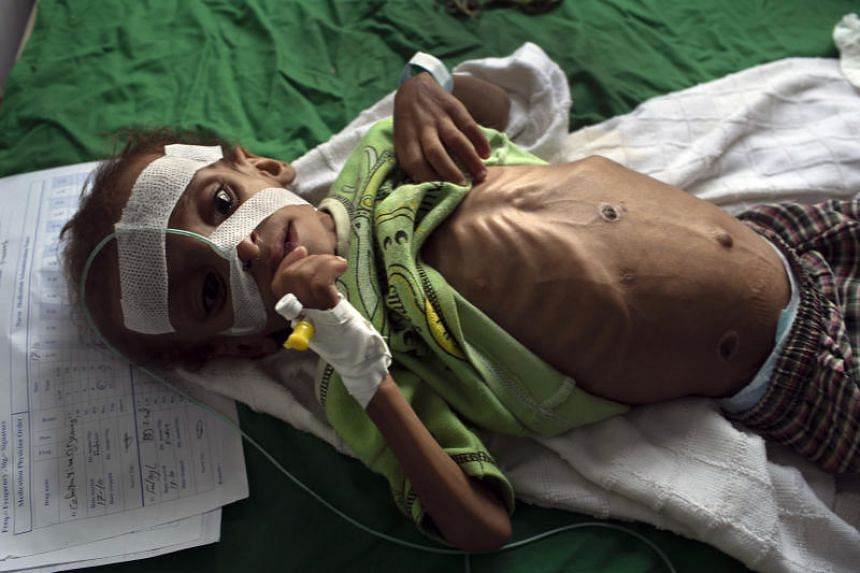 Shaher al-Hajaji, three, who suffers from malnutrition, lies on a bed at a hospital in Hajjah, Yemen, on Oct 17, 2018. The burn scars on his chest are the result of a folk remedy that was attempted by his father.