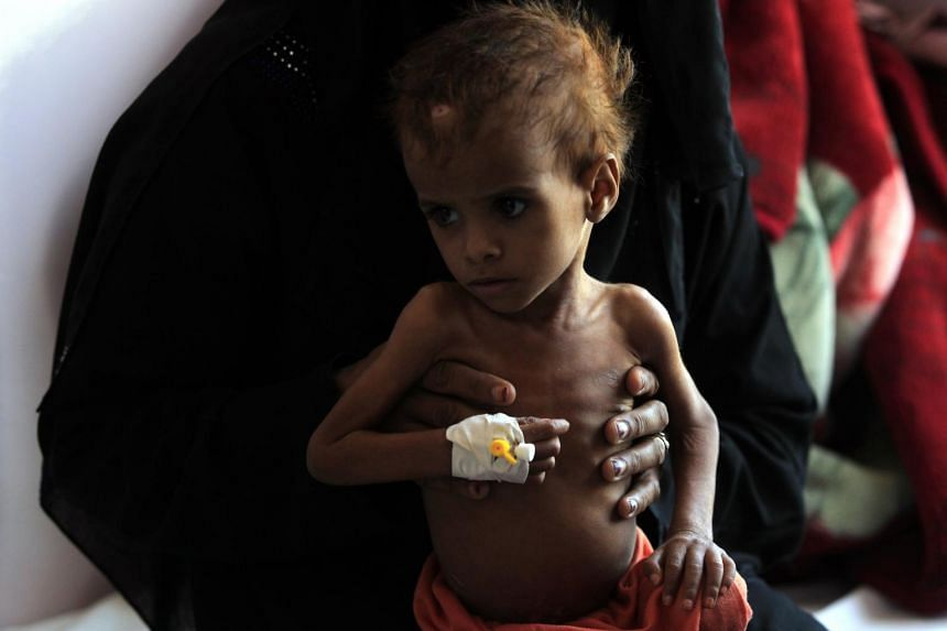 According to the UN, more than 10,000 people have been killed, with 22 million in need of food aid since 2015.