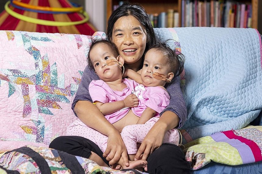 Ms Bhumchu Zangmo holding her conjoined twins Nima and Dawa before their surgery. The 15-month-old Bhutanese twins were separated in a six-hour operation at the Royal Children's Hospital Melbourne yesterday.