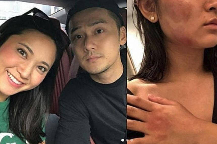 Chinese actor Jiang Jinfu is alleged to have beaten his Japanese model girlfriend, Haruka Nakaura (both above left), brusing her face and body (right).