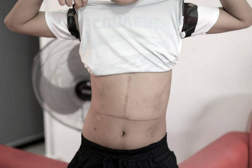 Mohamad Fardeen Altaf, 11, shows the permanent scar from his transplant surgery. The scar measures 26cm by 10cm.