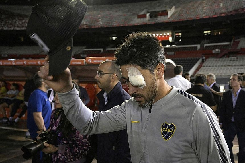 Boca Juniors captain Pablo Perez with an eyepatch after he and teammate Gonzalo Lamardo suffered injuries in the mayhem. TV channel TyC Sports said Perez's cornea was affected.