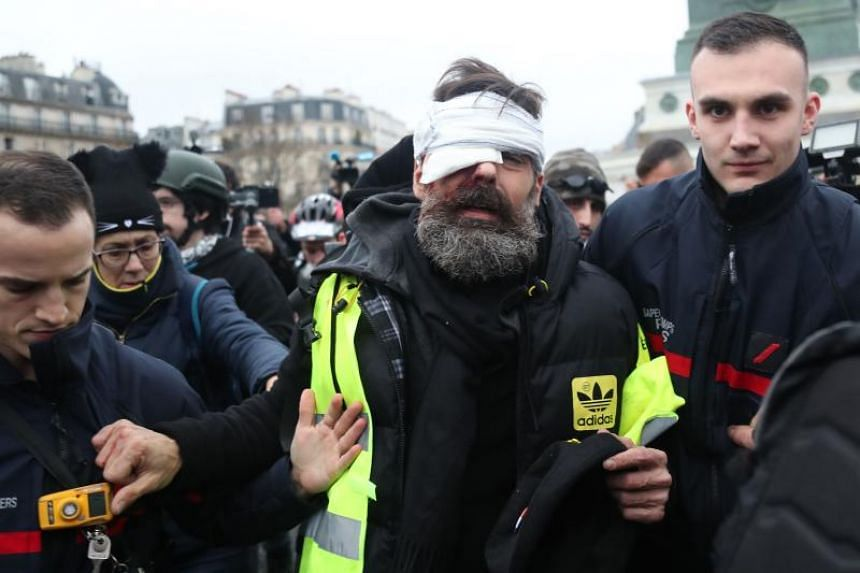 Yellow vest movement leader Jerome Rodrigues being evacuated after getting injured in the eye during clashes between protesters and riot police, in Paris on Jan 16, 2019.