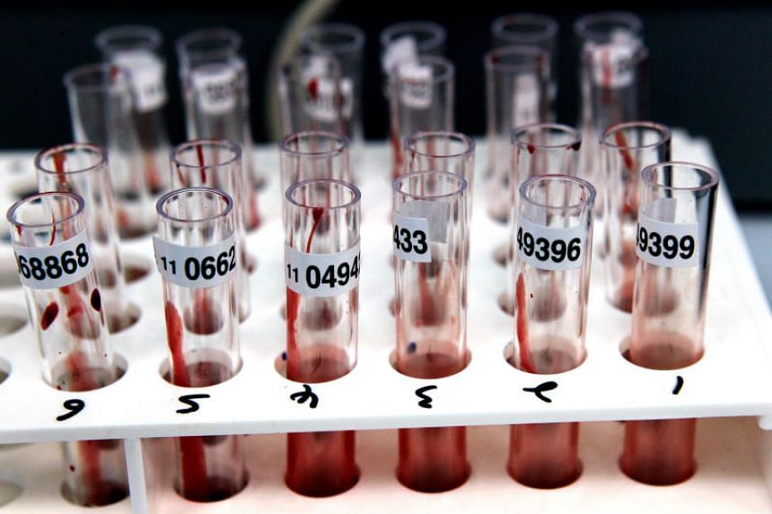 File photo showing test tubes with blood samples. MOM has not received any past complaints or appeals against wrongful dismissal based on an employee's HIV status.