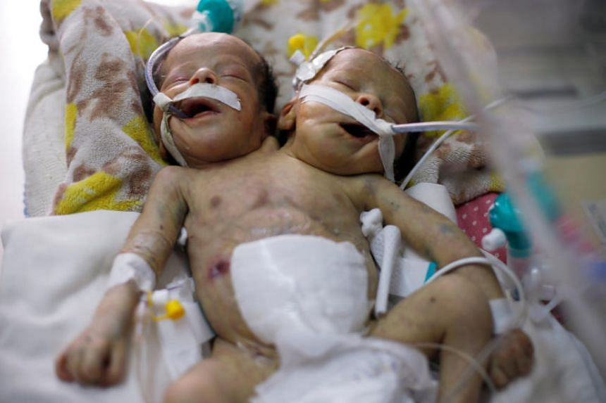Newborn conjoined twins lie in an incubator at the child intensive care unit of al-Thawra hospital in Sanaa, Yemen, on Feb 6, 2019. They have two arms, two legs and one genitalia.