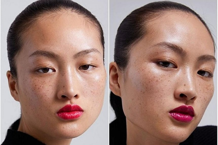 "Some Chinese netizens say a new Zara ad featuring a freckled Chinese model is an insult. State-run media says the comments show ""a lack of cultural confidence""."