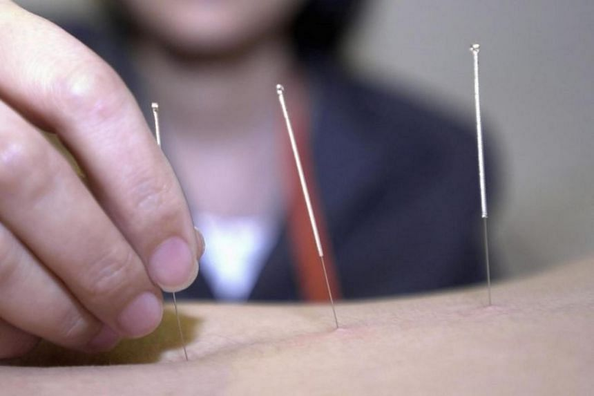 An acupuncturist sticking needles into the stomach of a patient.