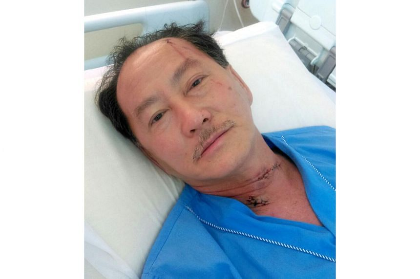 Mr Ong Thiam Soon was attacked by his Indonesian maid, Daryati, on June 7, 2016.