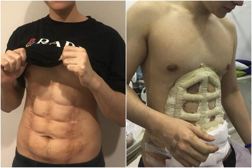 Instead of implanting silicone into patients' abdomens, the abs are 'etched' out by removing fat around the abdomen area.