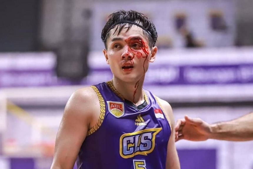 CLS Knights Indonesia guard Wong Wei Long suffered a nasty gash in the Asean Basketball League semi-final Game 3 decider against Mono Vampire in Surabaya on April 28, 2019.