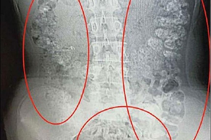 A picture circulating on social media of a scan showing many unusual spherical shadows in the 14-year-old girl's abdomen.