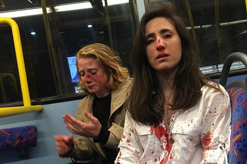 Ms Melania Geymonat (right) and her girlfriend, Chris, after they were attacked on the top deck of a bus in North London last month.