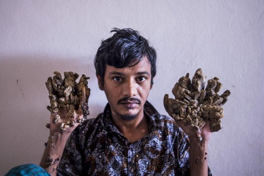 """Abul Bajandar, known as the """"Tree Man"""", has had 25 operations since 2016 to remove growths from his hands and feet caused by a rare syndrome."""