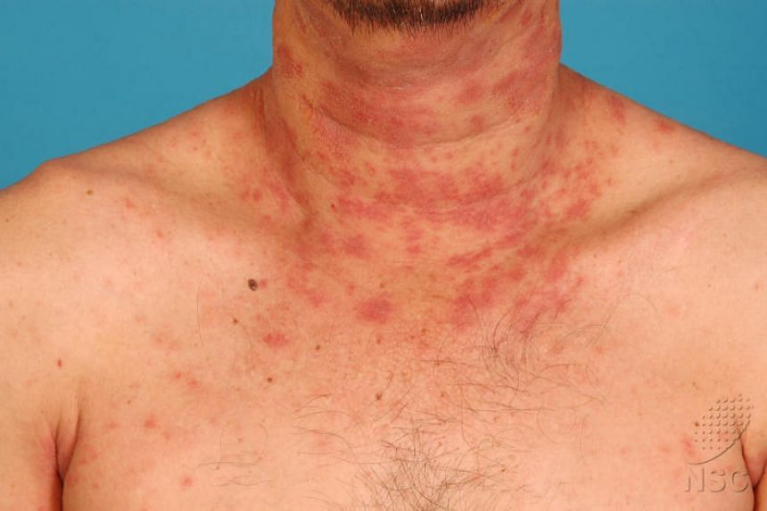 More than a third of patients who used biologic drug Dupilumab for treatment for atopic dermatitis (pictured) had clear to almost clear skin after four months, during trial tests.