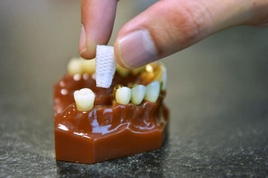 Jaw-dropping: The 3D-printed dental plugs that could save implant