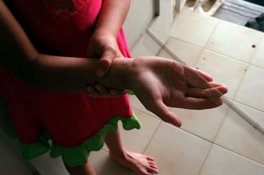 Posed photo of a girl holding her hand after being caned at home.