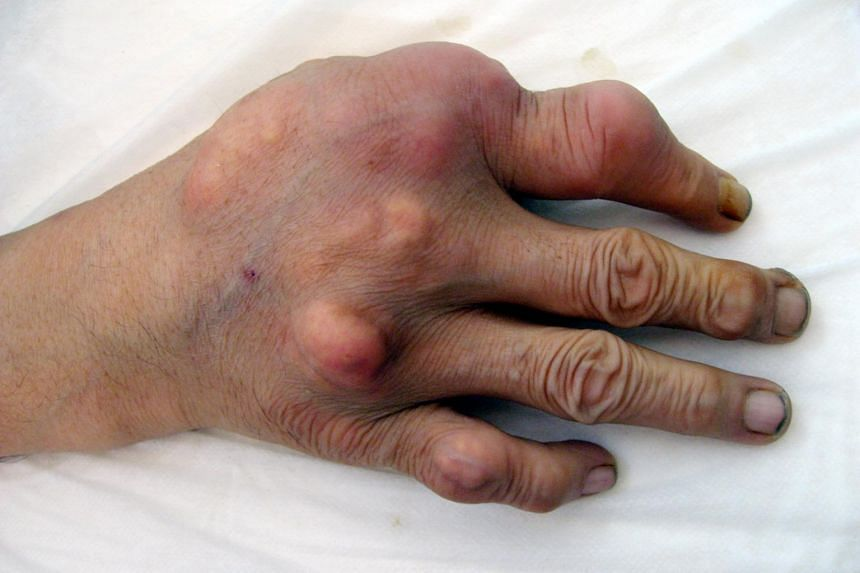 Gout, a form of arthritis caused by high uric acid levels in the blood, used to be thought of as a rich, old man's disease, striking people in their 50s who live it up with rich food and drink.