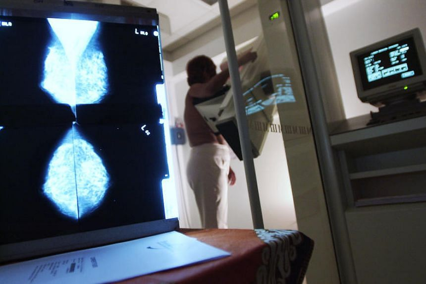 A posed photo of a patient undergoing a mammogram.