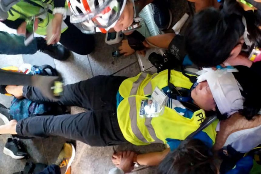 Ms Veby Mega Indah of Suara Hong Kong was hurt while reporting from an overhead bridge in the Wan Chai area on Sept 29, 2019.