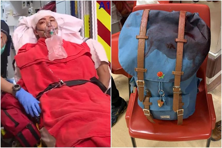 Mr Jimmy Sham was bleeding from the head but was conscious when seeking treatment at the hospital. (Right) His stained backpack after the attack on Oct 16, 2019.