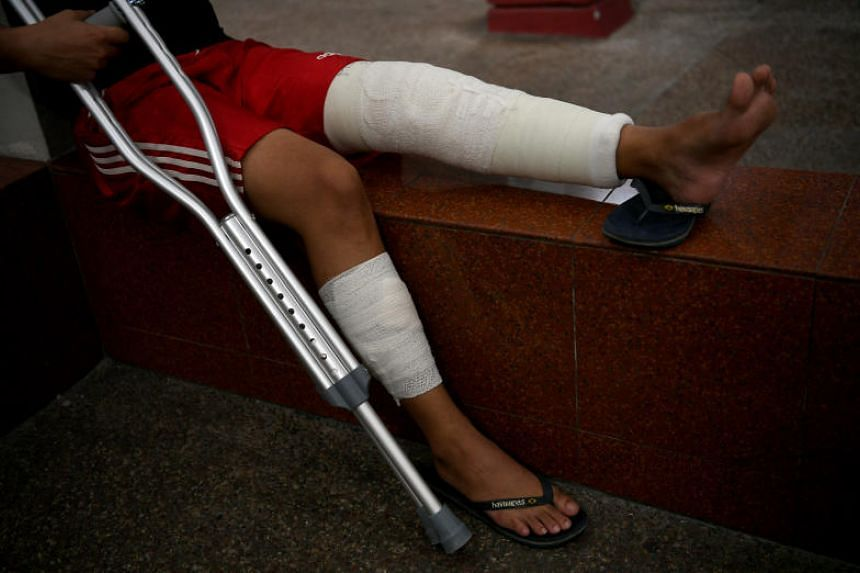 One of the victims of an attack at Marina Bay Sands on Halloween suffered broken bones in both legs.