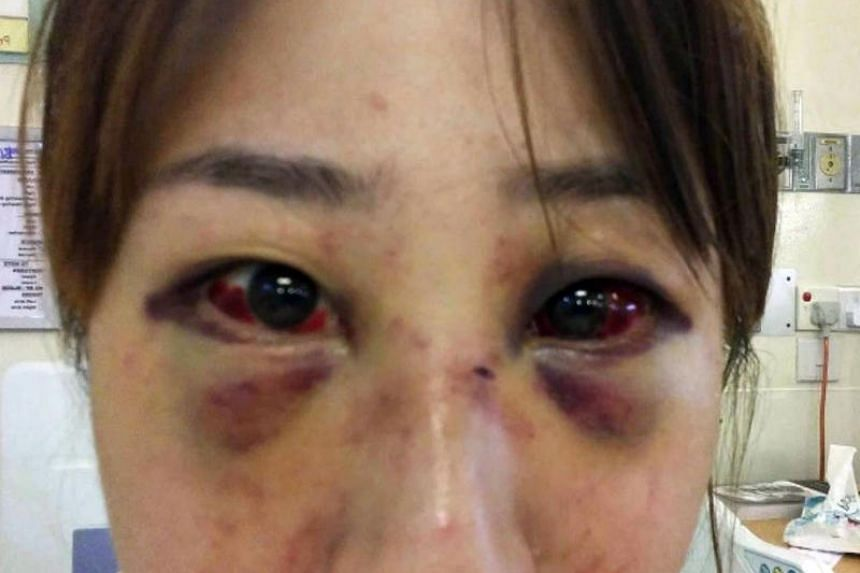 """Clarence Teo allegedly punched Ms Rachel Lim's face repeatedly with great force, and hit her head against the wall. Her face was """"badly bruised... beyond recognition"""", according to a police officer."""