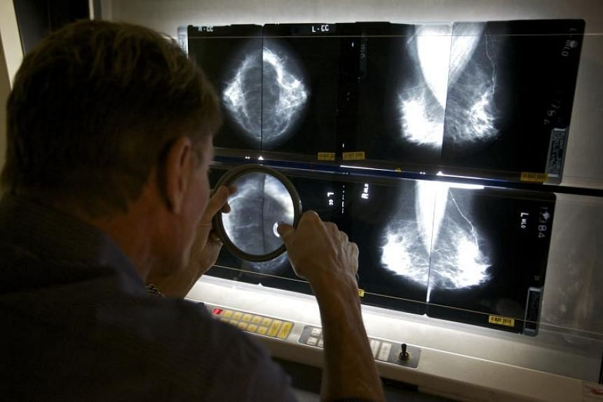The American Cancer Society says radiologists miss about 20 per cent of breast cancers in mammograms, and half of all women who get the screenings over a 10-year period have a false positive result.