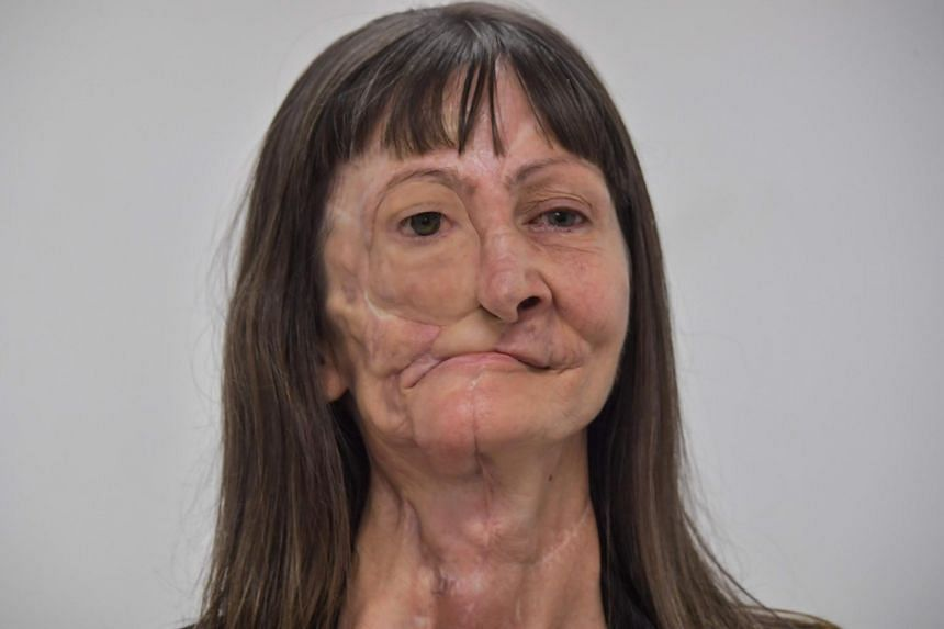 A photo from Dec 3, 2019, shows Denise Vicentin, who lost her right eye and part of her jaw to cancer, after receiving a digitally-engineered prosthesis, in Sao Paulo, Brazil.
