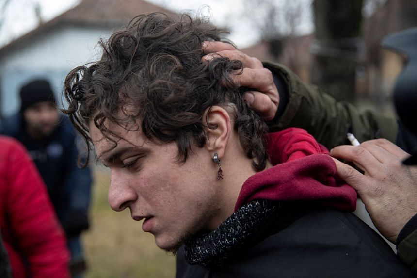 An injured migrant shows the wounds that he says were caused by Hungarian police in Horgos, Serbia.