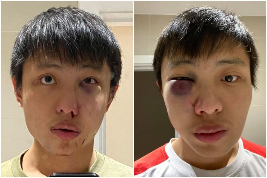 Facebook user Jonathan Mok, who said he has been studying in London for two years, posted two photos of himself showing a swollen eye.