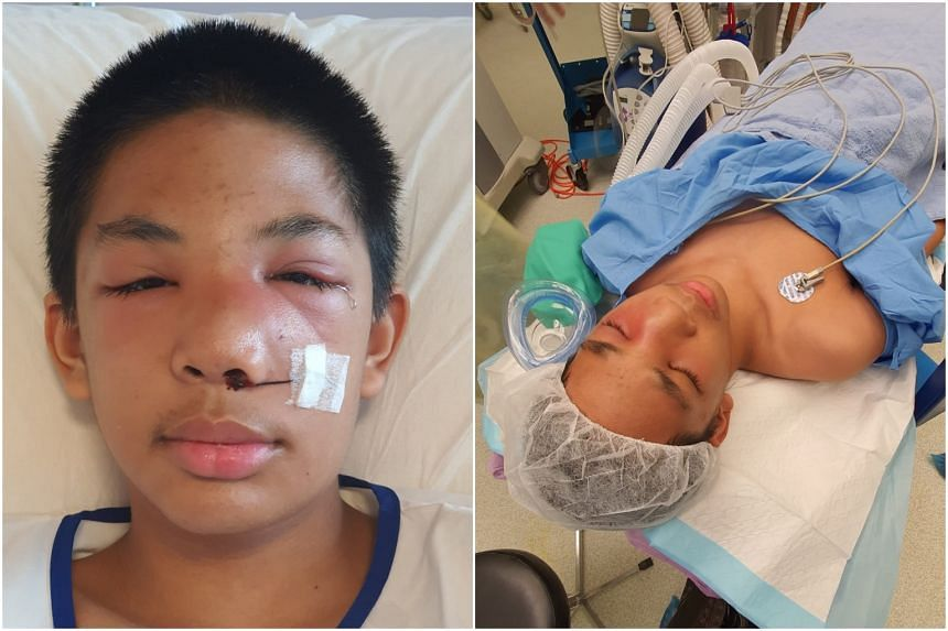 Imann, 14, was injured after getting hit in the face on Feb 18 by one of his religious teachers at the Maahad Tahfiz Wattarbiyah school in Malaysia, said his mother. The teen is getting better at KK Women's and Children's Hospital.