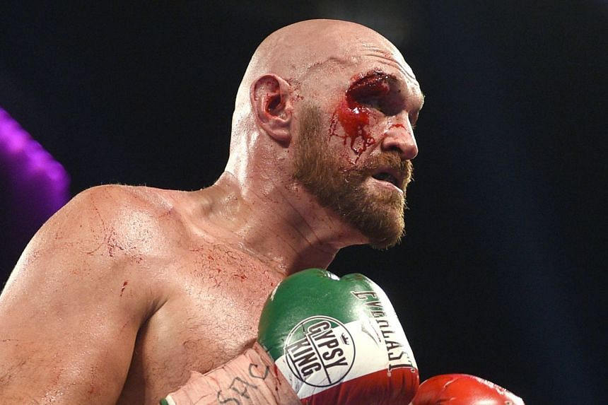 Tyson Fury splits from controversial adviser, says promoter