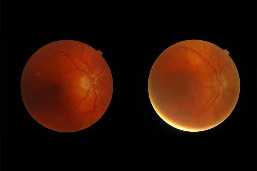 Images of the ocular fundus (inside, back surface of the eye) showing the optic nerve head - the region where the blood vessels converge - in a normal patient (left) and in a patient with subtle abnormalities associated with a brain tumour.