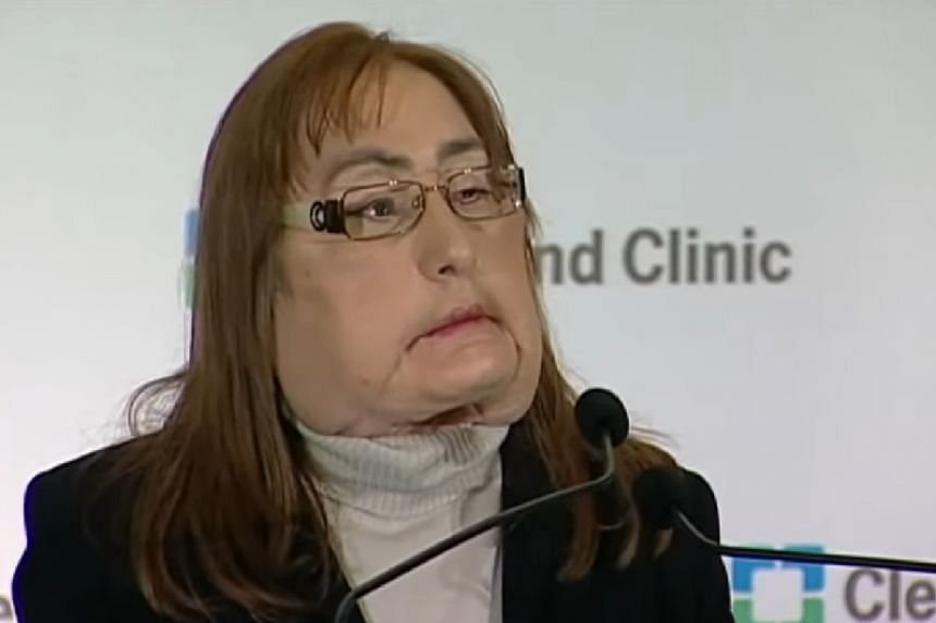 A screenshot of Connie Culp from an online news report about her death.