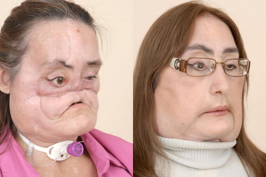 Connie Culp, first US recipient of a partial face transplant, before (left) and after her surgery.