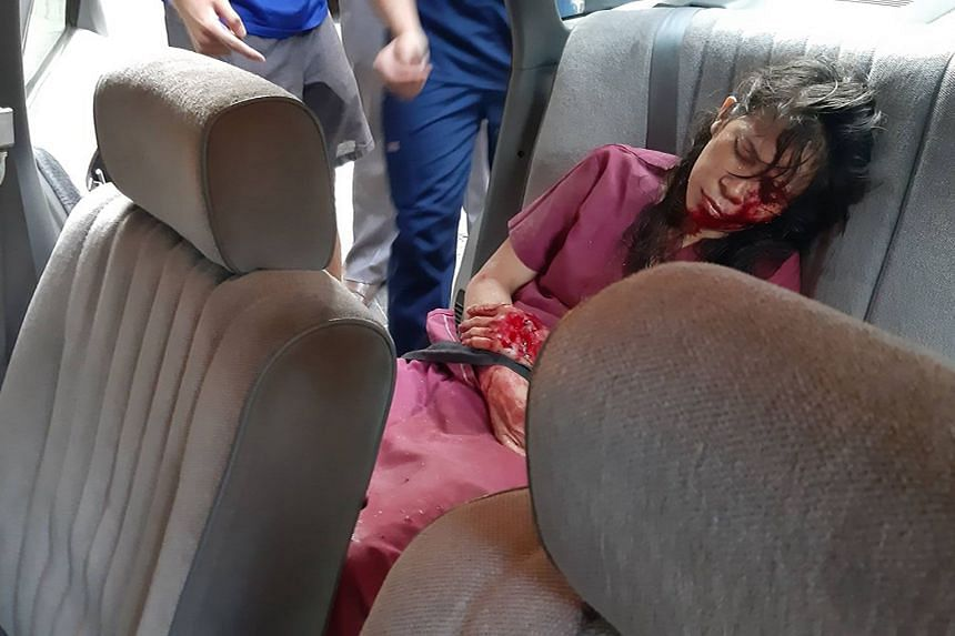 An injured girl lies in the back of a car in the aftermath of the explosion.