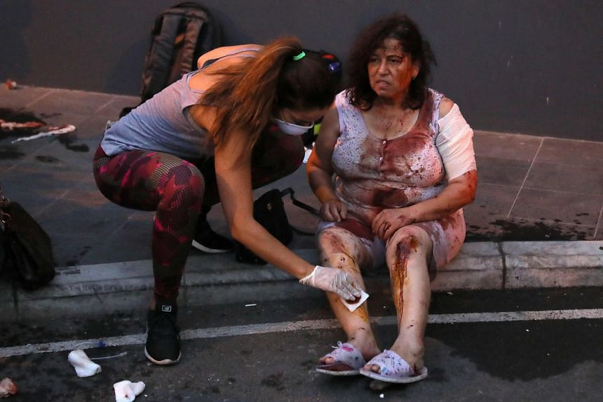 Wounded people wait to receive treatment outside a hospital following the explosion.