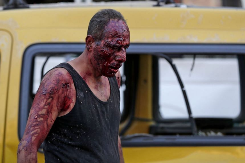 A wounded man walks at the port near the scene of the explosion in the Lebanese capital Beirut on Aug 4, 2020.