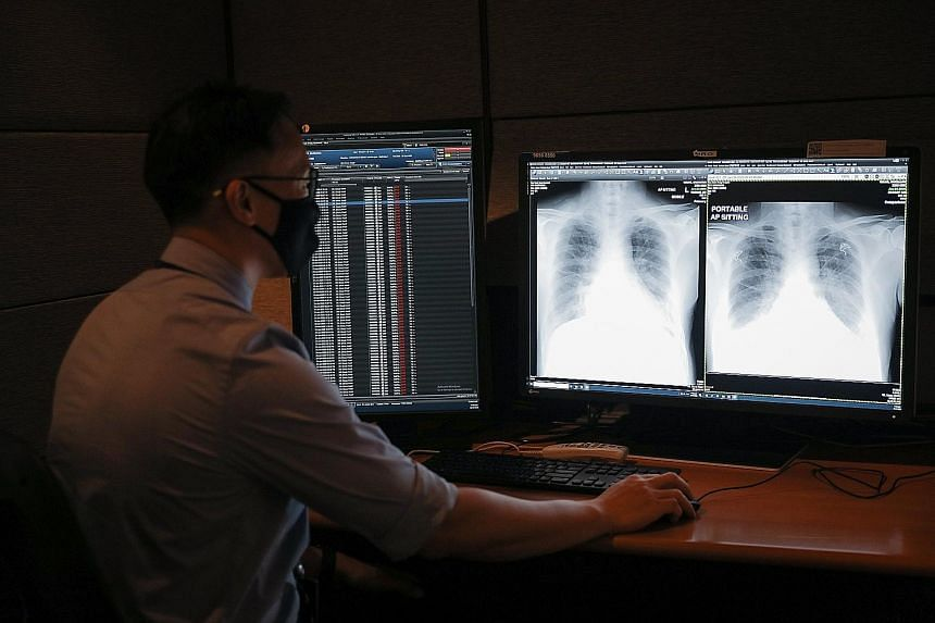 Dr Ting Yong Han, consultant in diagnostic radiology (clinical) at TTSH, looking at a chest X-ray of a Covid-19 patient that was flagged by the AI tool, RadiLogic, which can analyse an image within three seconds.